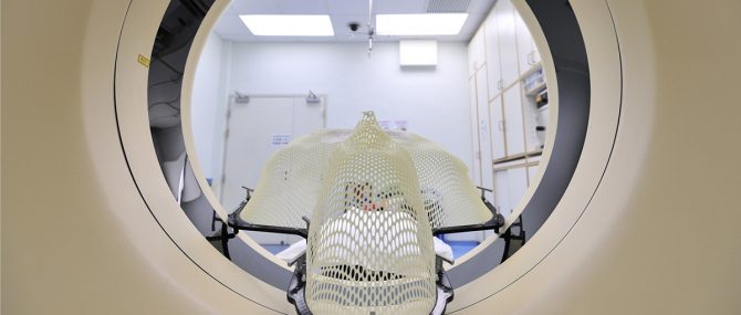 Imagen: Radioterapia: Efectos secundarios