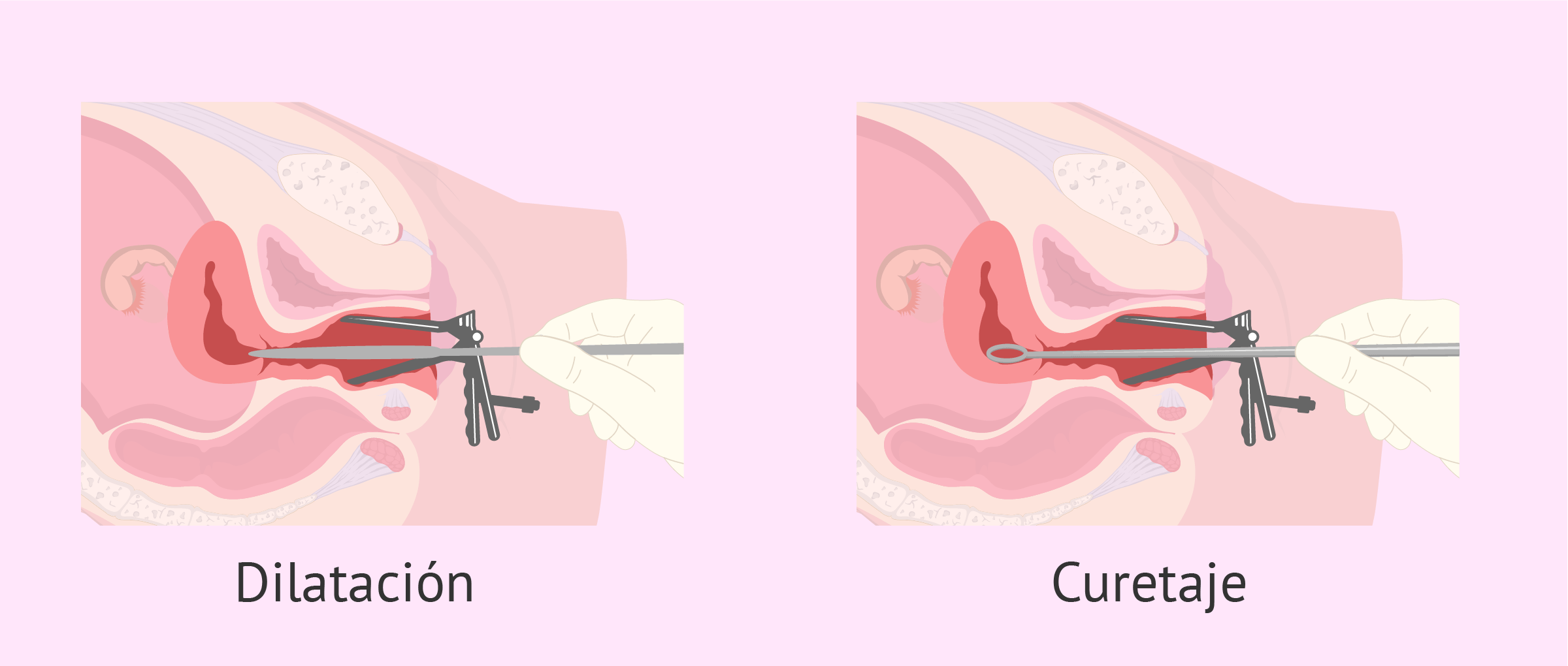 Como se realiza un legrado uterino