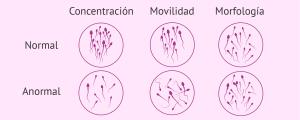 Evaluación seminal, examen macroscópico