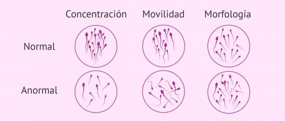 Cómo se interpretan los resultados del seminograma y sus valores?