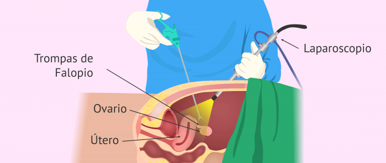 Salpingectomía, esterilización femenina.