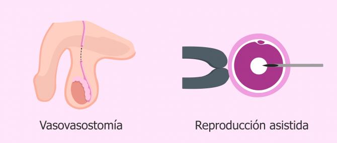 ¿Es posible el embarazo con la vasectomía? – Técnicas y precios