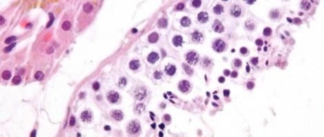 Formación espermatozoides