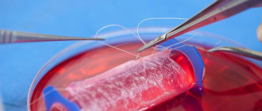 Vagina desarrollada en el laboratorio
