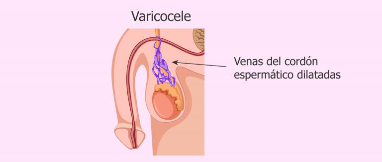 Infertilidad y varicocele