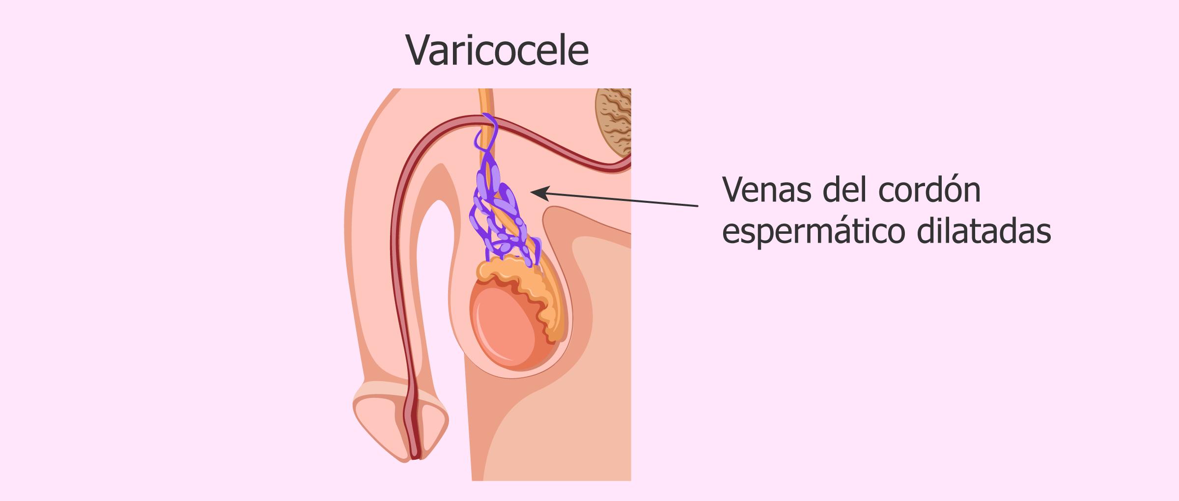 ¿Se puede lograr el embarazo con varicocele testicular?