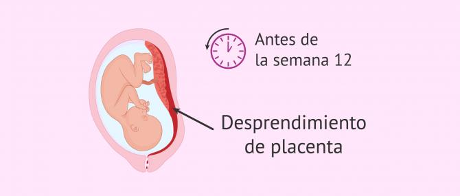Imagen: abruptio-placetae