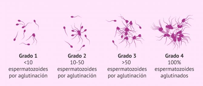 Imagen: Adhesión de los espermatozoides