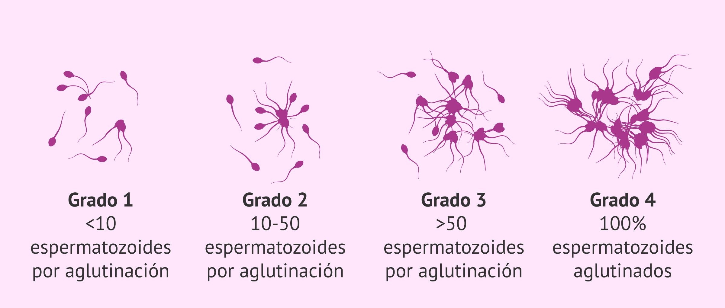 Diferentes grados de aglutinación de los espermatozoides