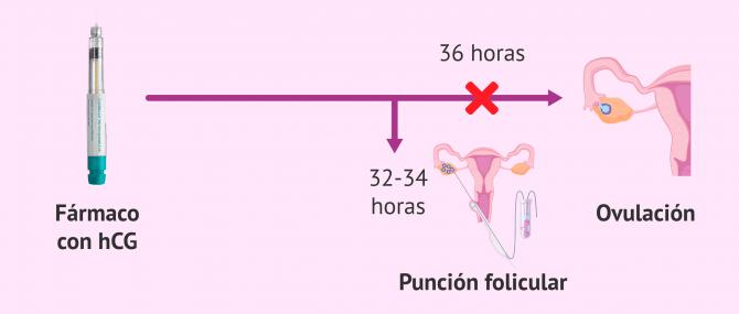 Imagen: Inducción de la ovulación y punción folicular