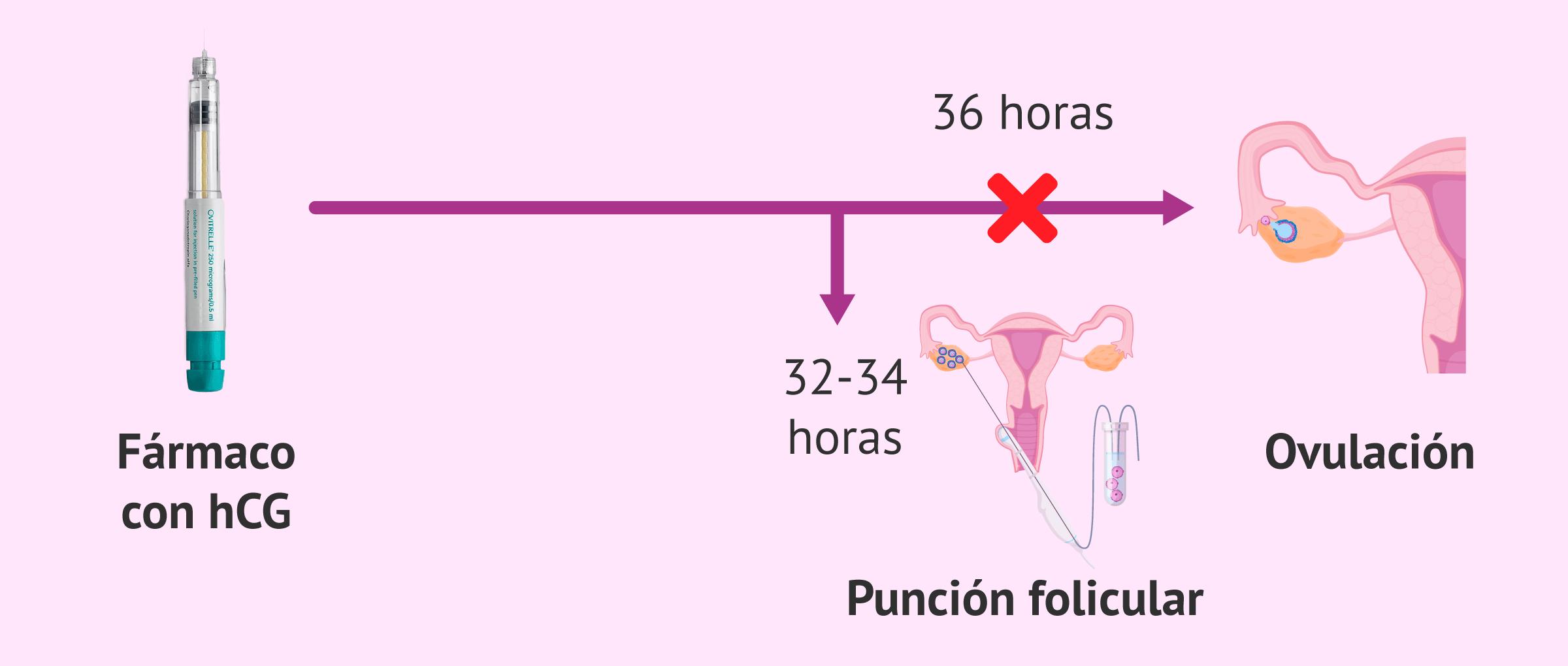 Inducción de la ovulación y punción folicular