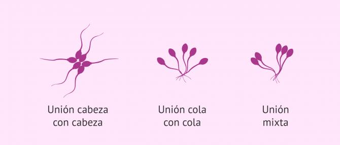 Imagen: Tipos de aglutinación de los espermatozoides