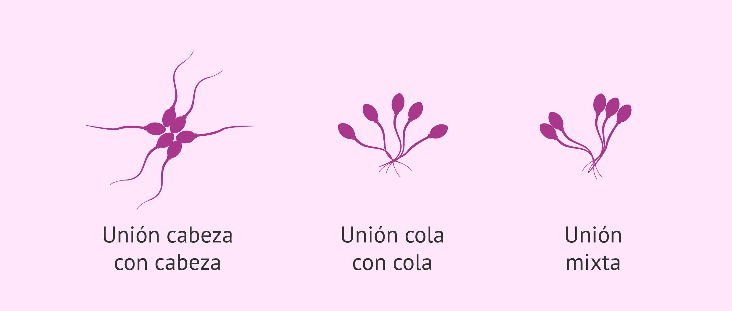 Tipos de aglutinación de los espermatozoides