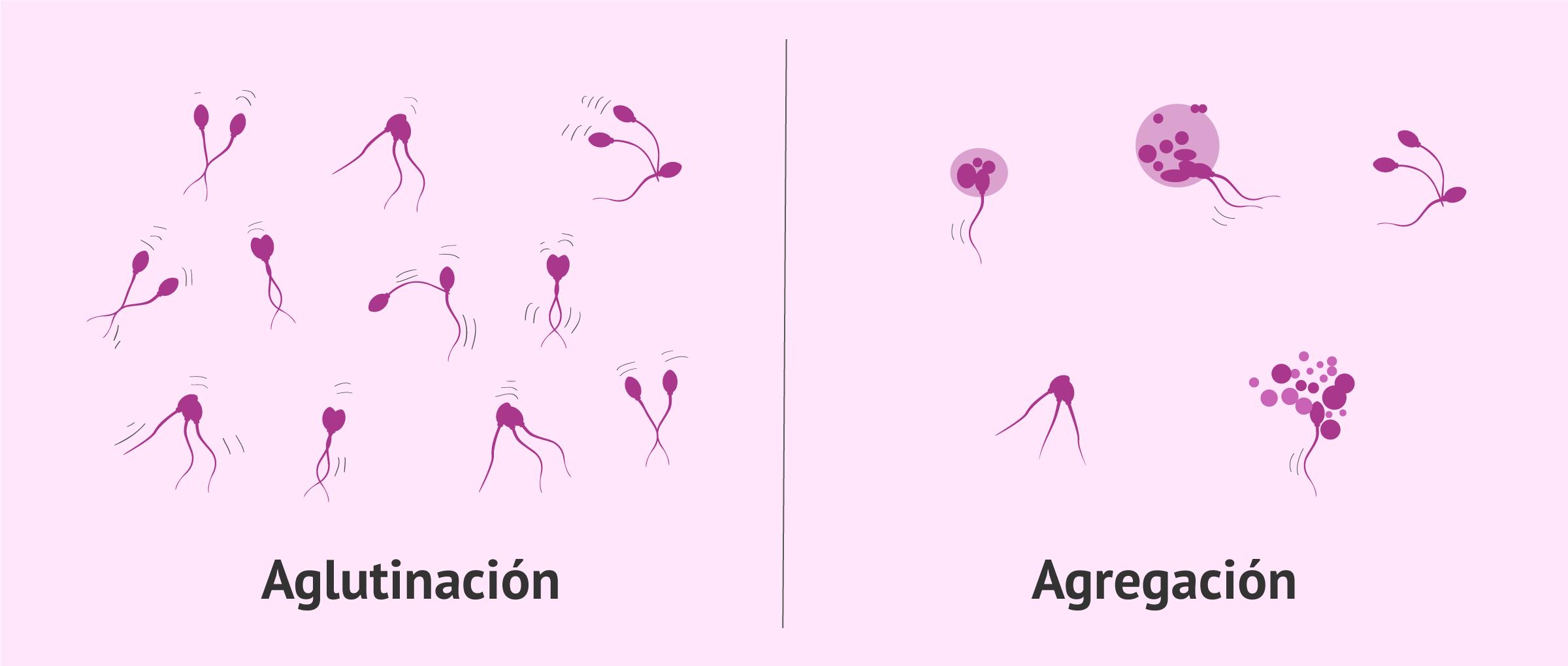 Diferencia entre aglutinación espermática y agregación