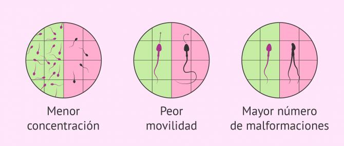 Imagen: Alteraciones espermáticas