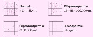 Esterilidad del varón por alteraciones en el número espermatozoides