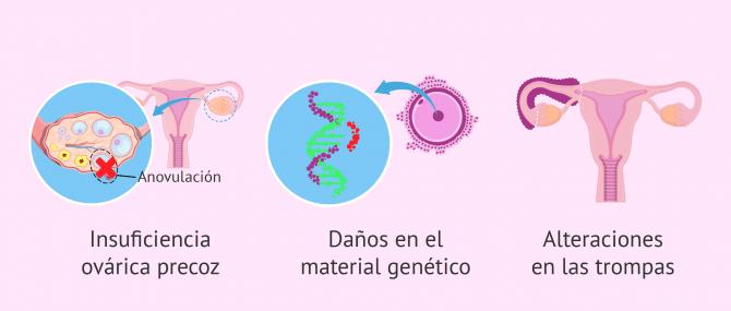 Imagen: Alteraciones en la mujer tras el tratamiento oncológico