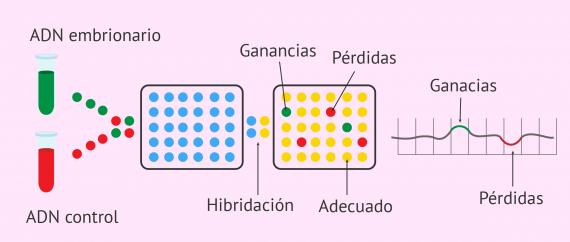 Imagen: Análisis genético por arrays de CGH