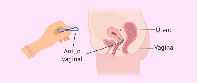 Imagen: Anillo vaginal anticonceptivo