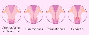 Paso de los espermatozoides