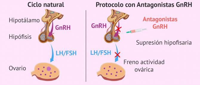 Imagen: Fisiología de los antagonistas de la GnRH