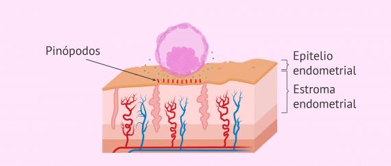 Imagen: Aposición del embrión