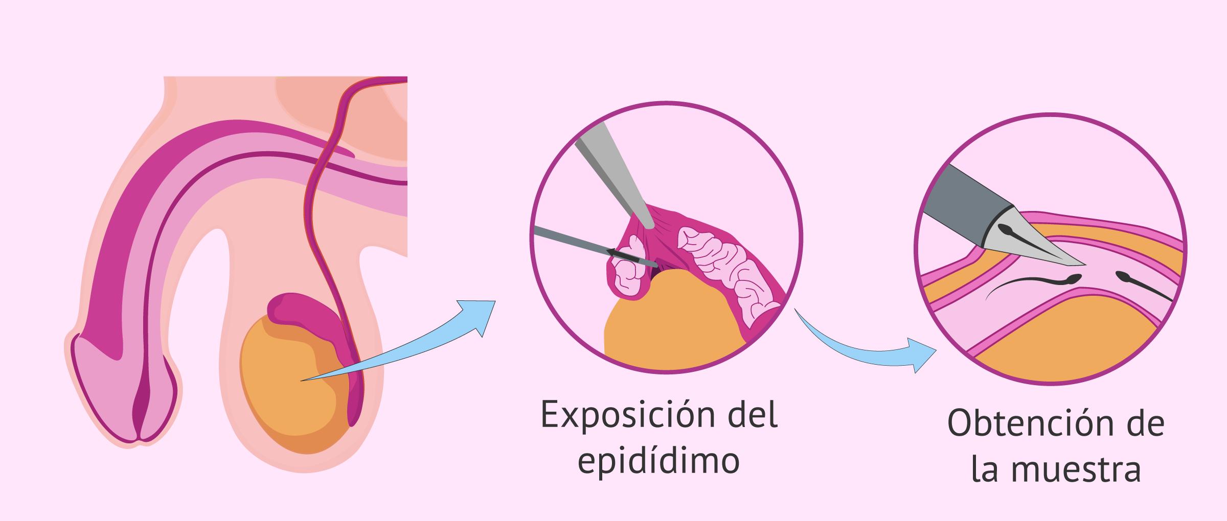 Aspiración de espermatozoides del epidídimo por MESA