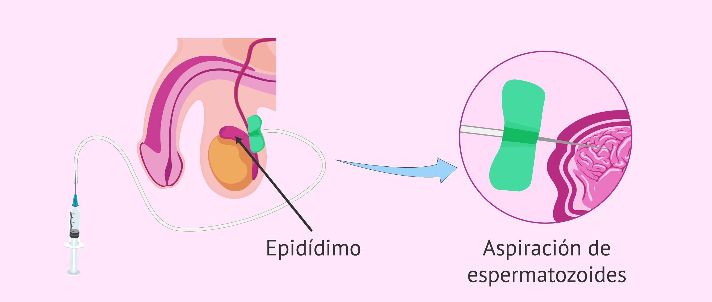 Aspiración de espermatozoides del epidídimo por PESA