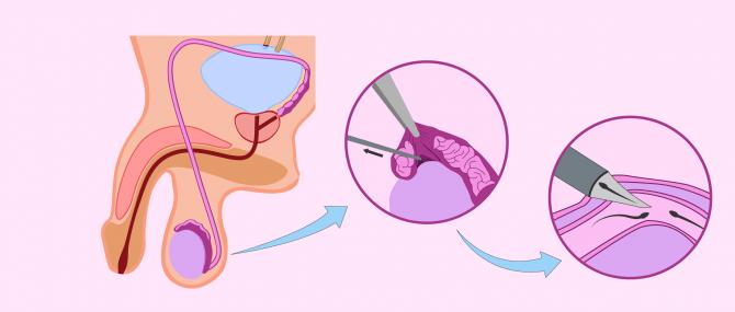 Imagen: Aspiración microquirúrgica de espermatozoides del epidídimo (MESA)
