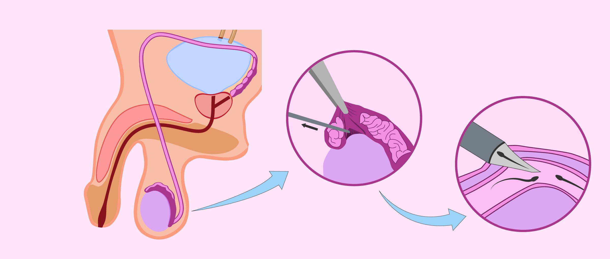 Aspiración microquirúrgica de espermatozoides del epidídimo (MESA)