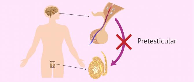 Imagen: Causa pretesticular de azoospermia