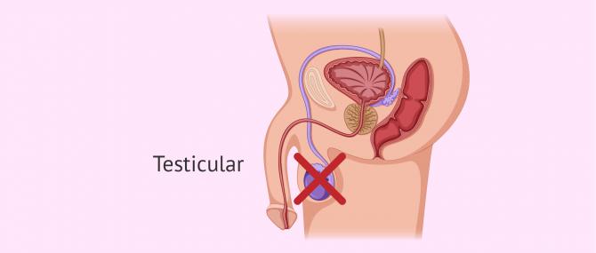 Imagen: Causas testiculares de azoospermia