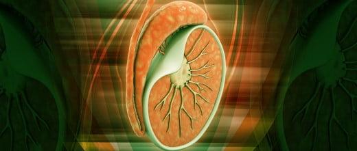 Azoospermia y varicocele