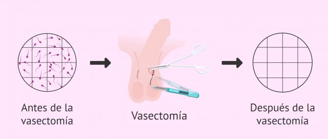 Imagen: Ausencia de espermatozoides después de la vasectomía