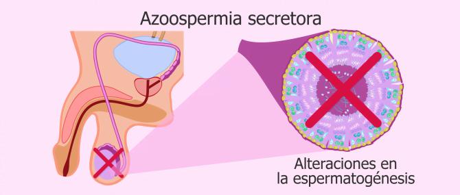 ¿Qué es la azoospermia secretora? – Causas y tratamientos