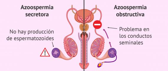 Imagen: Diferencias entre azoospermia obstructiva y secretora