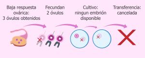 Ecografía de ovario