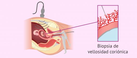 Imagen: Técnica de biopsia de corion