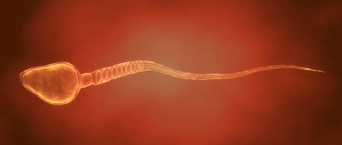 Azoospermia obstructiva imagen