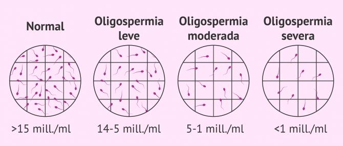 ¿Qué es la oligospermia? – Causas, tipos y tratamientos