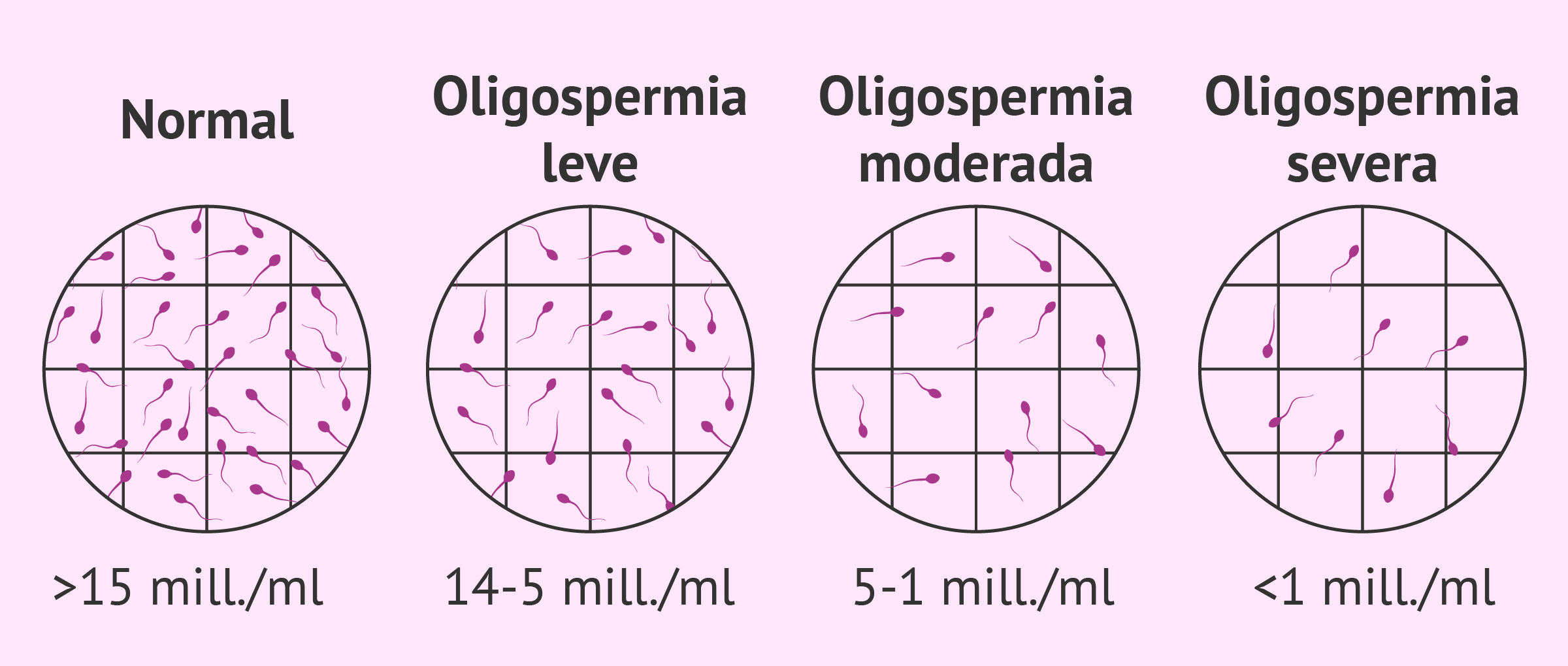 Diagnosticar oligozoospermia