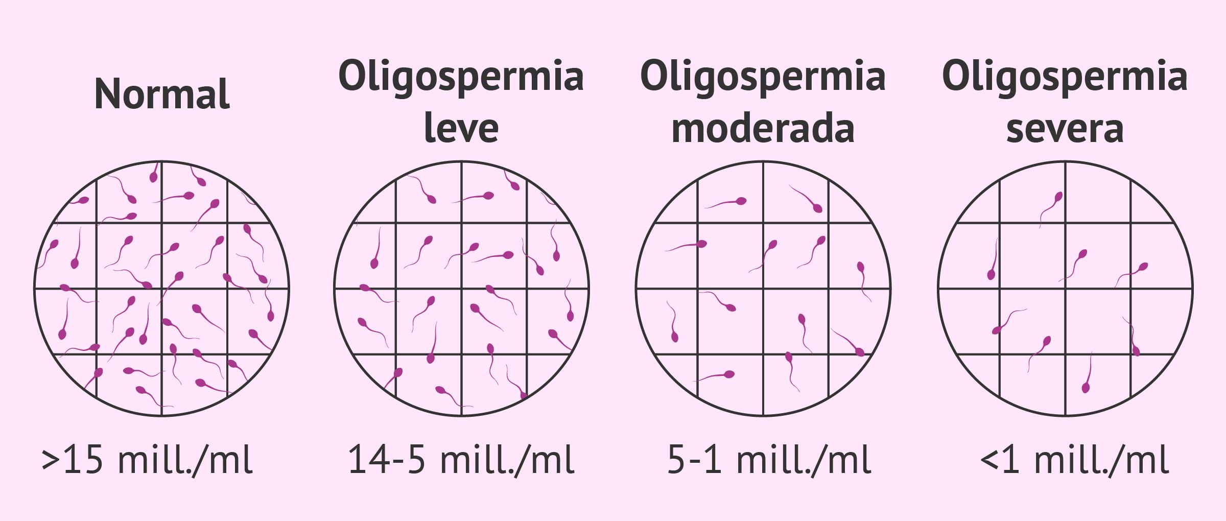 oligospermie severe
