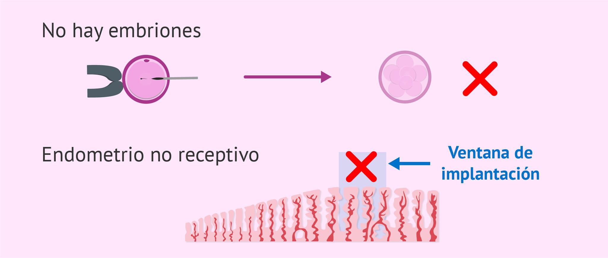 Cancelación de la transferencia de embriones