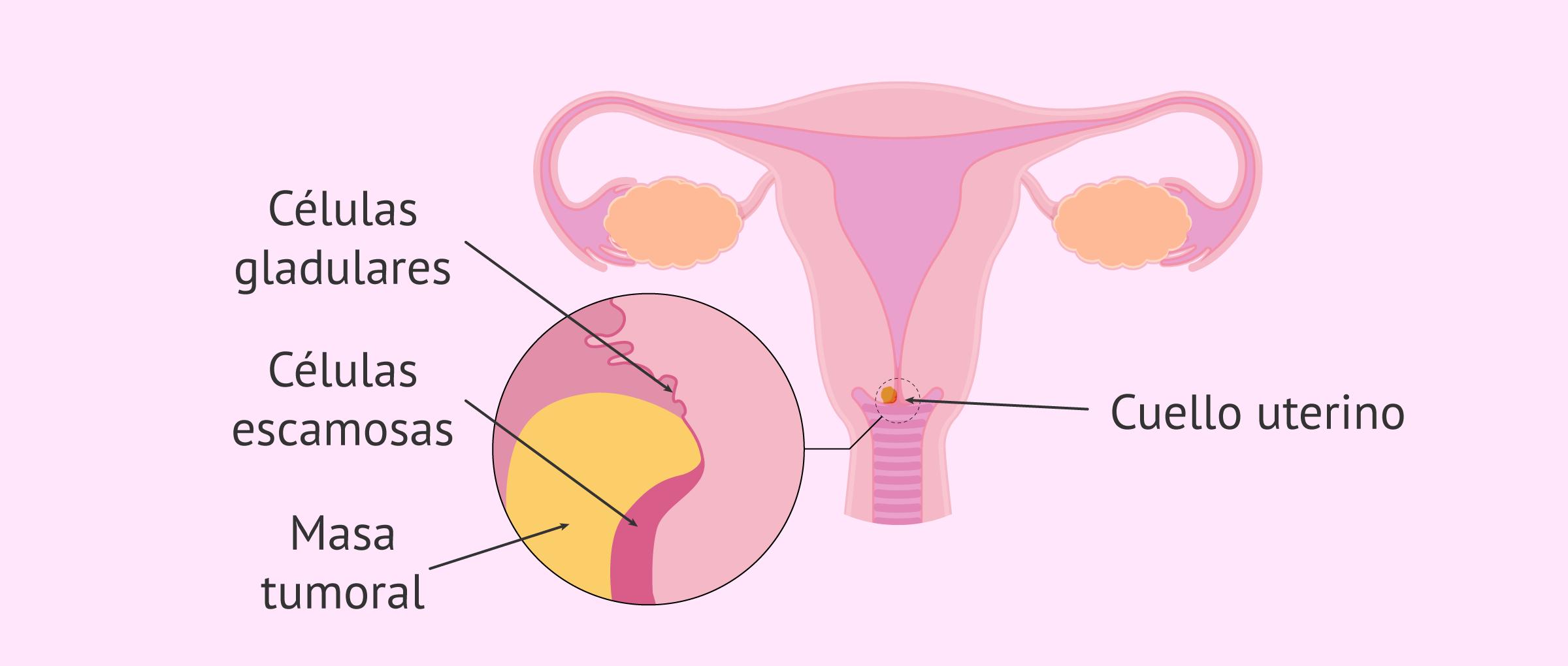 Cáncer de cuello de útero: síntomas, diagnóstico y tratamiento