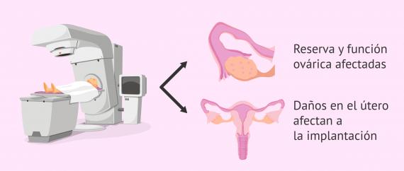 Radioterapia e infertilidad femenina