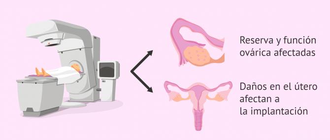 Imagen: Radioterapia e infertilidad femenina