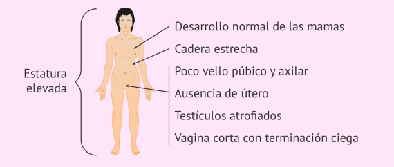Imagen: Características del síndrome de Morris