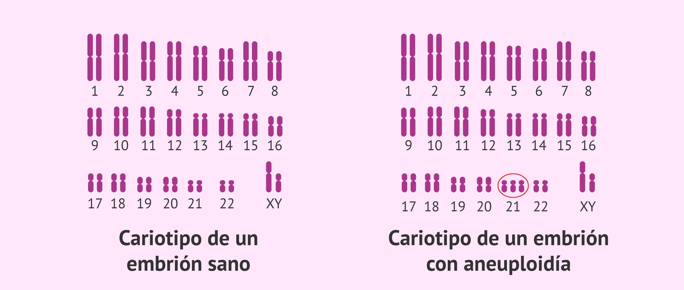 cariotipo-aneuploidia