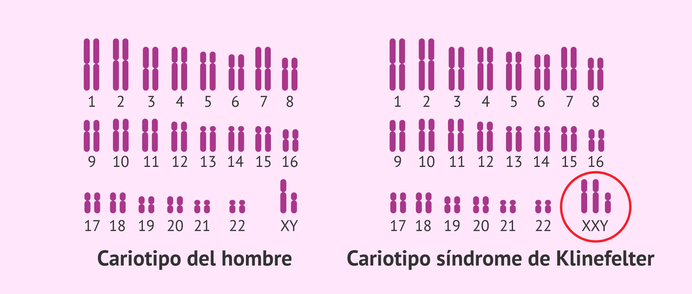 Cariotipo normal y cariotipo con síndrome de Klinefelter