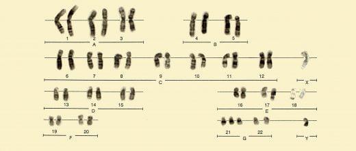Alteraciones en los cormosomas